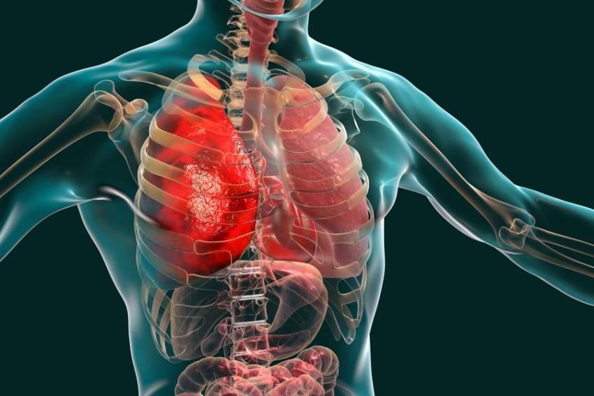 الالتهاب الرئوي الحاد الأسباب والأعراض وطرق العلاج والوقاية