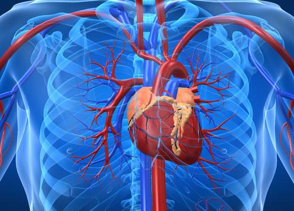 النواسير الشريانية ما هي الأعراض والأسباب وكيف يتم العلاج ؟