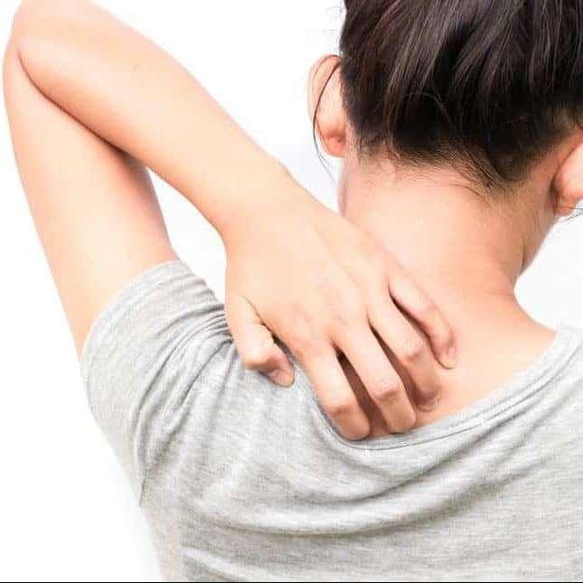 الحكة الجلدية ما هي الأعراض والأسباب وما هي الوسائل العلاجية المتاحة؟