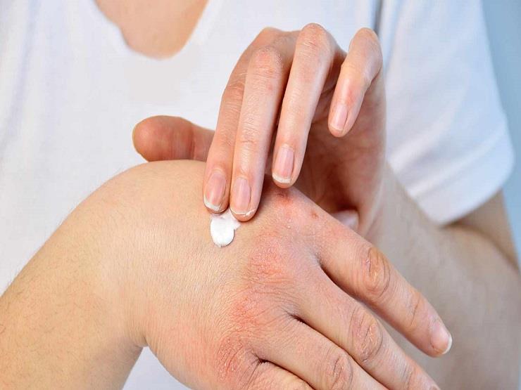مرض الصدفية ما هي الأعراض والمسببات وكيف يتم علاجه والتعامل معه؟