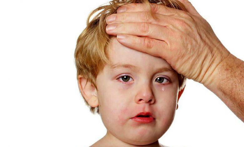 متلازمة كاواساكي ما هي الأعراض والأسباب والمضاعفات المحتملة وكيف يتم العلاج؟