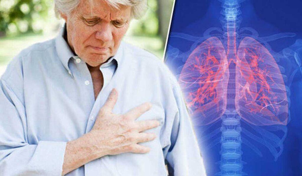 مرض سرطان الرئة الأعراض والأسباب والتشخيص ووسائل العلاج والوقاية