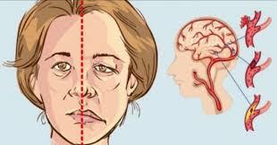 أعراض السكتة الدماغية .. 7 علامات احذر تجاهلها - في الصميم
