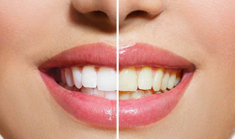 تنظيف الاسنان من الجير الاسود منزليًا وعند طبيب الاسنان بطرق فعالة